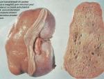 Chisturile renale benigne