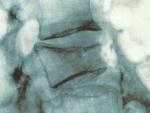 Celiachia – Complicaţii posibile
