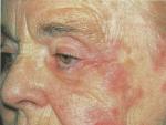 Zona zoster – O infecţie virală întârziată
