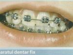 Imagini Dinti – Anatomia dintilor
