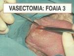 Despre Vasectomie