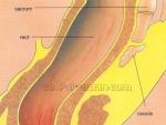 Despre Hemoroizi – Cauze si tratament