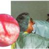 Chirurgie Obstetrică-Ginecologie