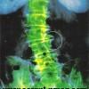 Cauze frecvente ale durerii lombare