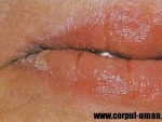 Candida – Cauze si simptome