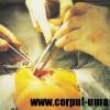 Tipuri de chirurgie pediatrică