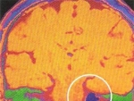 Neurofibromatoza