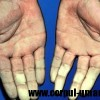 Sindromul Raynaud – sindromul mainilor reci