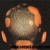 Pierderea părului