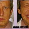 Afectări ale Nervului Facial