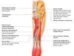 Nervul sciatic – structura si patologie