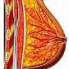 Galactoreea – cauze si tratament