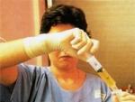 Tratamentul Insuficientei Hepatice Cronice