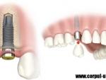 Implantul dentar – etape si noutati