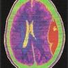 Neurochirurgia si urgentele