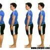 Efectele obezitatii