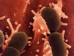 Infectia urinara