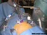 Chirurgia histeroscopica majora