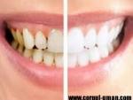 Detartrajul dentar – De ce trebuie indepartat tartrul si cum anume?