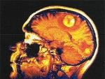 Tumorile cerebrale