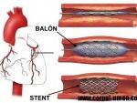 Angioplastia sau balonarea coronara – Cand o faceti si la ce va ajuta?
