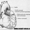 Bypass coronarian – Ce este si care sunt riscurile