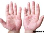 Top produse din plante pentru piele iritata