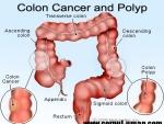 O noua metoda de diagnosticare a cancerului de colon
