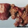 Cum poti preveni usor cancerul ovarian?