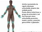 Alimente care reduc inflamatiile, utile in caz de artrita reumatoida