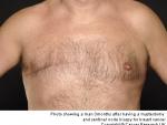 Pot face barbatii cancer la san?