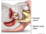 Noua cauza pentru aparitia cancerului de prostata