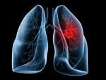 Studiu: Cum se poate vindeca cancerul pulmonar?