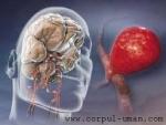 Factorii declansatori ai unui anevrism cerebral