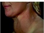 Cum se trateaza gusa tiroida?