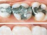 Plombele dentare – cauza multor afectiuni