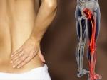Cum poti trata sciatica in mod eficient?