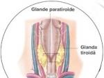 Afecţiunile paratiroidei