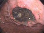 Ulcerul gastric (boala a stomacului)