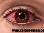 Inflamatiile ochiului