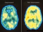 Esti depresiv(a)? Lipsa somnului te poate ajuta!
