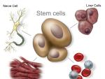 O noua descoperire in tratamentul cu celule stem