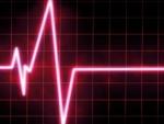 Riscul colericilor de a face infarct