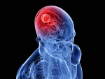 Tumora cerebrala, grade si simptome