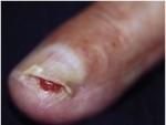Cum se manifesta onicoliza, o afectiune a unghiilor tale?
