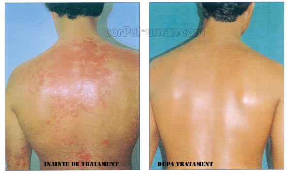 crema avene pentru dermatita atopica plantara
