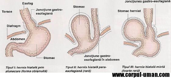 Hernia hiatala si esofagita de reflux