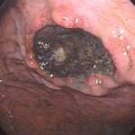 Ulcerul gastric