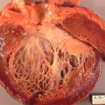 Miocardita