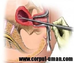 chirurgia histeroscopica minora